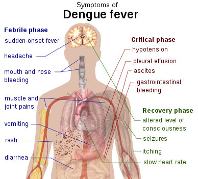 Mosquito Bite Dengue Fever Contracted In Spain Alcoy Today